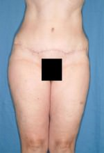 Tummy Tuck/Abdominoplasty