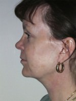 Face Lift and Neck Lift/Rhytidectomy
