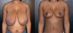 breast-implants05a